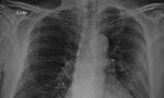 Chest radiography and computed tomography findings from a Brazilian patient with COVID-19 pneumonia [Originally published in Rev. Soc. Bras. Med. Trop. vol. 53]