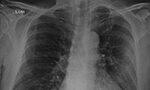 Radiografía de tórax y tomografía computarizada de un paciente brasileño con neumonía por COVID-19 [Originalmente publicado en Rev. Soc. Bras. Med. Trop. vol. 53]