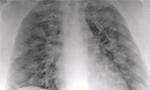 O sinal do halo como apresentação tomográfica pulmonar na COVID-19 [Originalmente publicado na Einsten, vol. 18]