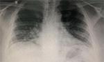 Coronavírus e o Coração | Um Relato de Caso sobre a Evolução da COVID-19 Associado à Evolução Cardiológica [Originalmente publicado nos Arq. Bras. Cardiol.]